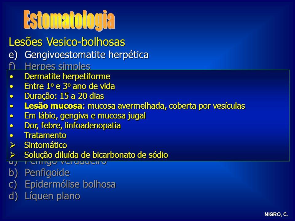 NIGRO, C. Lesões Vesico-bolhosas e)Gengivoestomatite herpética f)Herpes simples g)Herpes zoster h)Herpangina i)Sarampo j)Doença pés-mãos-boca k)Mononu