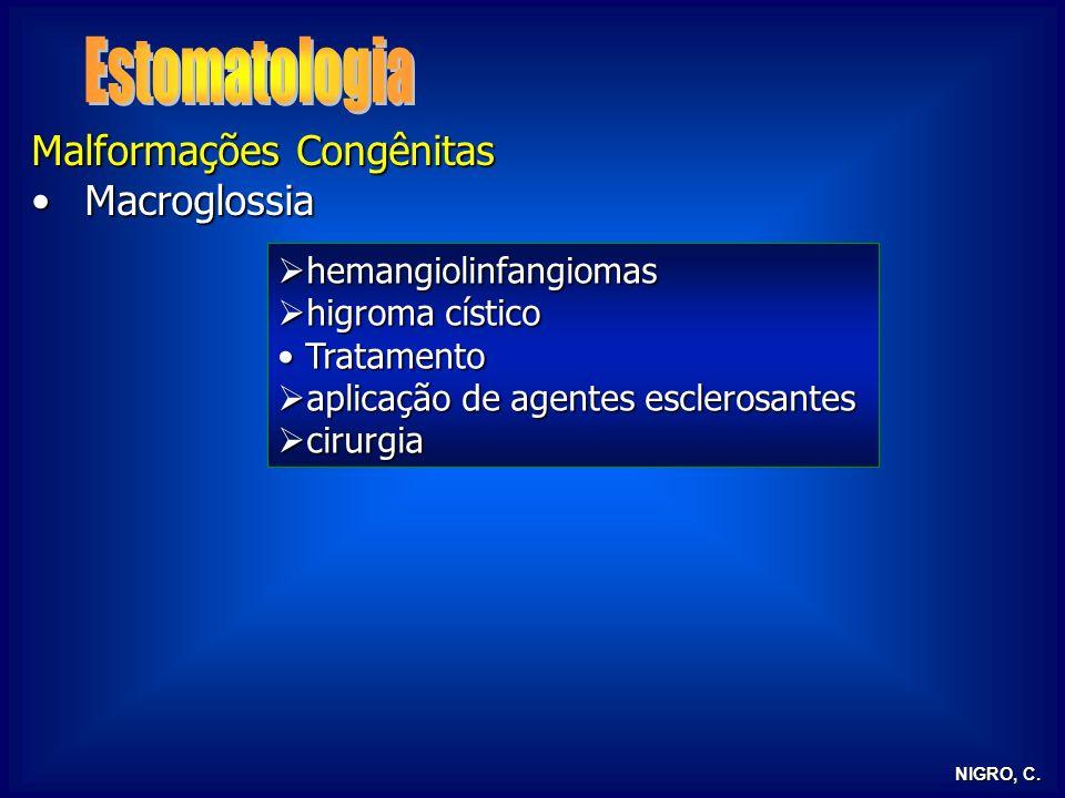 NIGRO, C. Malformações Congênitas MacroglossiaMacroglossia hemangiolinfangiomas hemangiolinfangiomas higroma cístico higroma cístico Tratamento Tratam