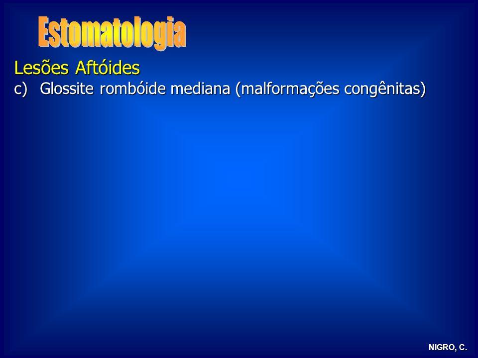 NIGRO, C. Lesões Aftóides c)Glossite rombóide mediana (malformações congênitas)