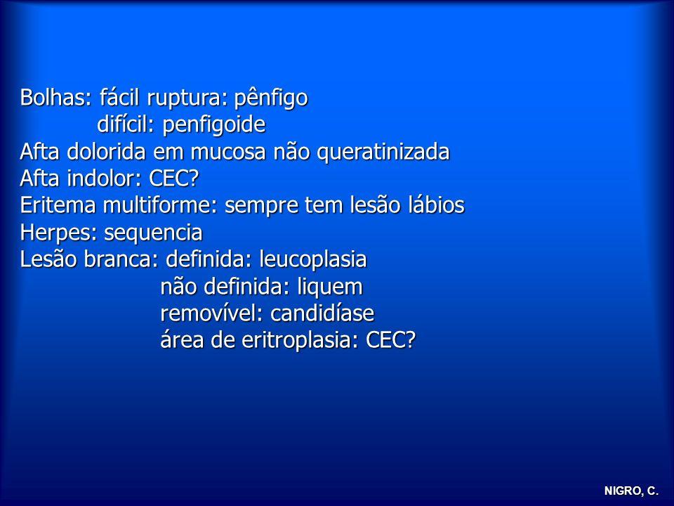 NIGRO, C. Bolhas: fácil ruptura: pênfigo difícil: penfigoide difícil: penfigoide Afta dolorida em mucosa não queratinizada Afta indolor: CEC? Eritema