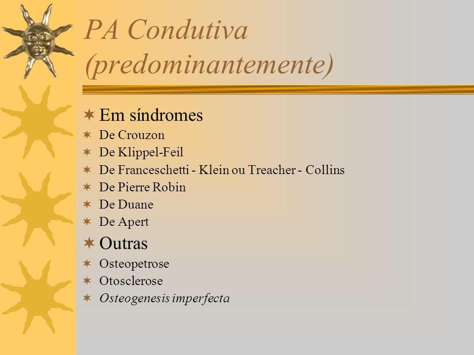 PA Condutiva (predominantemente) Em síndromes De Crouzon De Klippel-Feil De Franceschetti - Klein ou Treacher - Collins De Pierre Robin De Duane De Ap