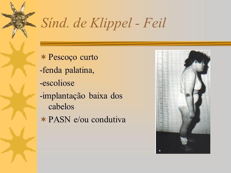 Sínd. de Klippel - Feil Pescoço curto -fenda palatina, -escoliose -implantação baixa dos cabelos PASN e/ou condutiva