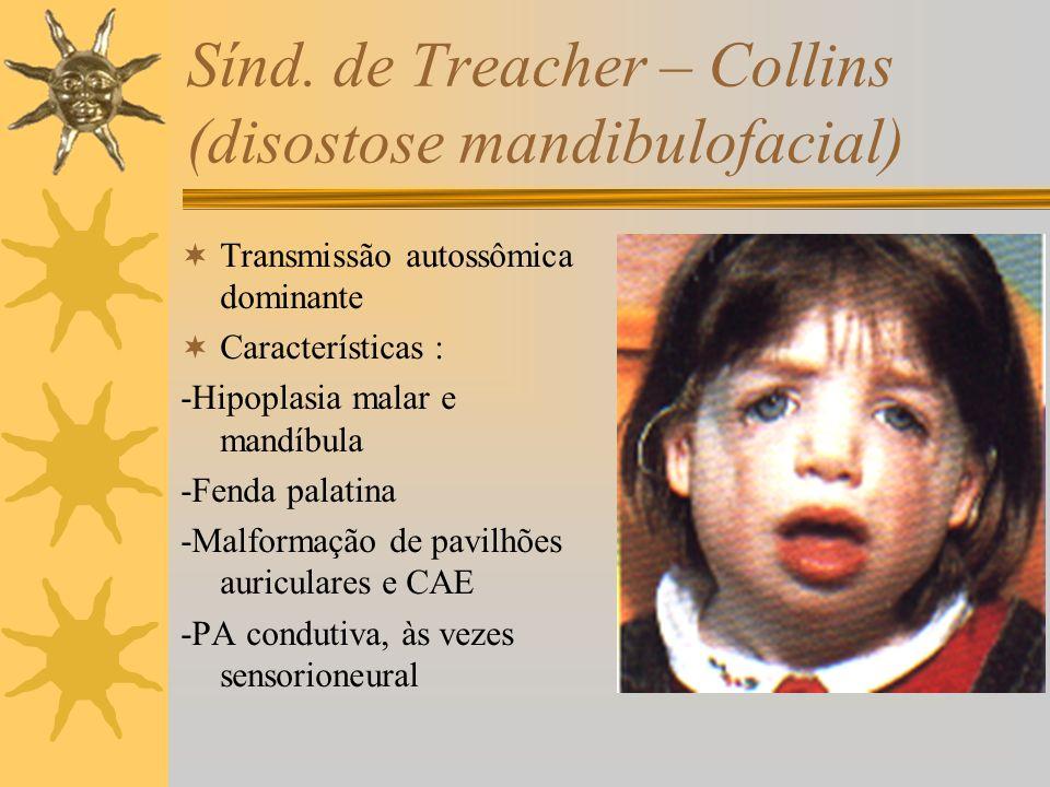 Sínd. de Treacher – Collins (disostose mandibulofacial) Transmissão autossômica dominante Características : -Hipoplasia malar e mandíbula -Fenda palat