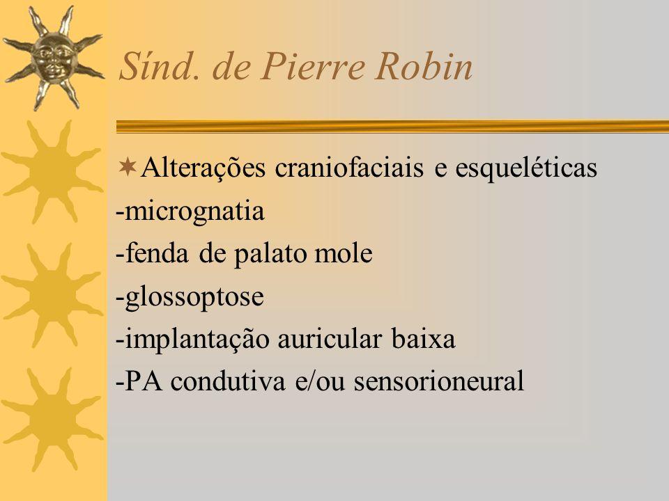 Sínd. de Pierre Robin Alterações craniofaciais e esqueléticas -micrognatia -fenda de palato mole -glossoptose -implantação auricular baixa -PA conduti