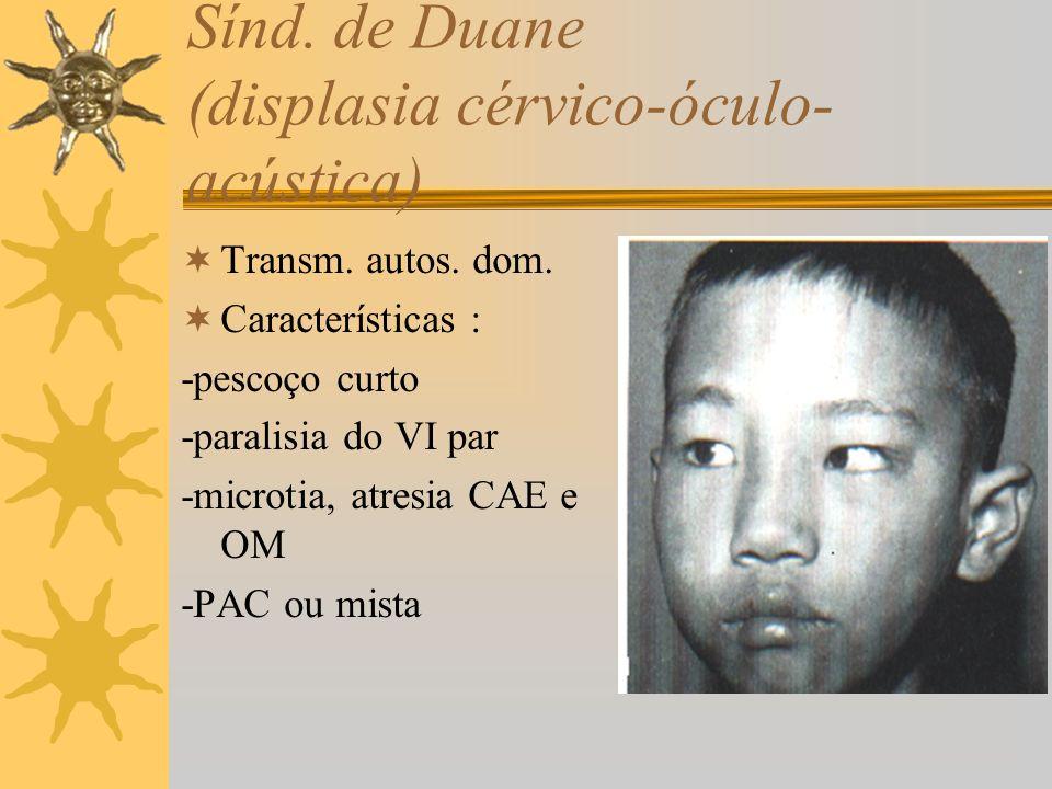 Sínd. de Duane (displasia cérvico-óculo- acústica) Transm. autos. dom. Características : -pescoço curto -paralisia do VI par -microtia, atresia CAE e