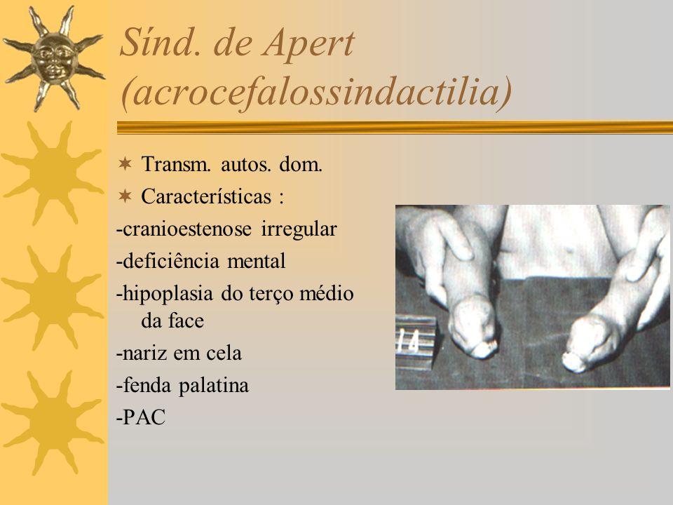 Sínd. de Apert (acrocefalossindactilia) Transm. autos. dom. Características : -cranioestenose irregular -deficiência mental -hipoplasia do terço médio