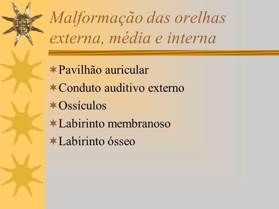 Malformação das orelhas externa, média e interna Pavilhão auricular Conduto auditivo externo Ossículos Labirinto membranoso Labirinto ósseo
