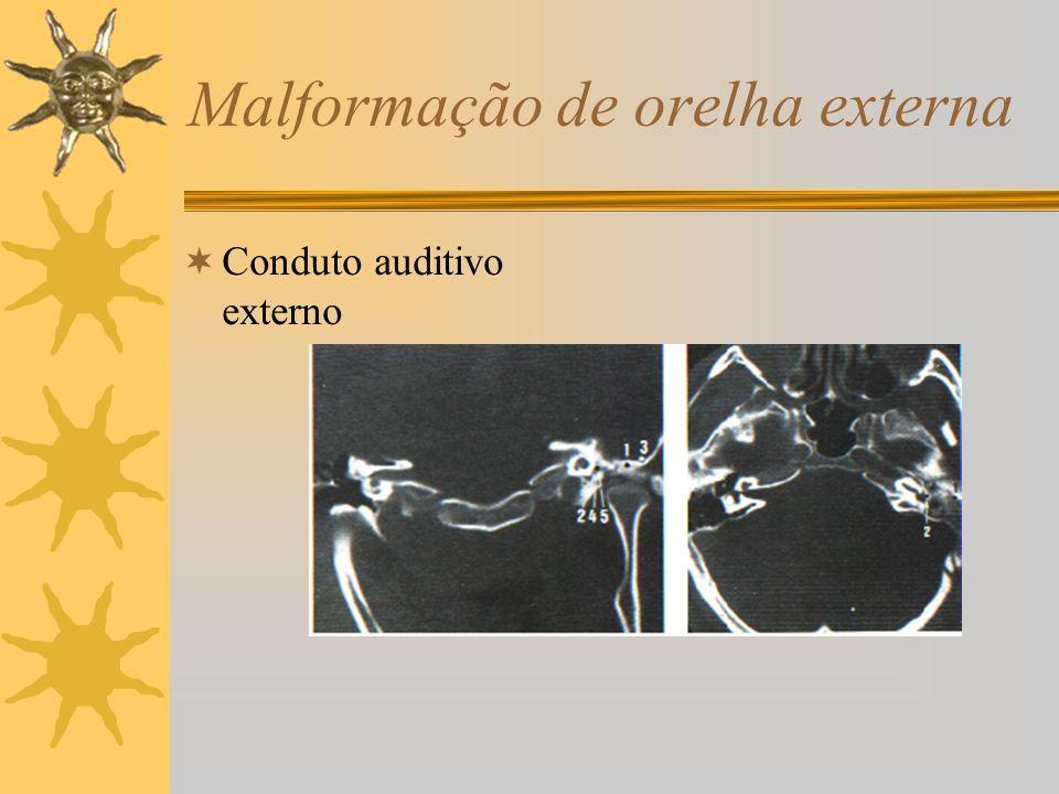 Malformação de orelha externa Conduto auditivo externo