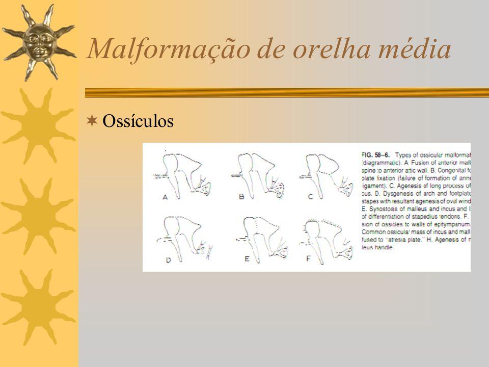 Malformação de orelha média Ossículos