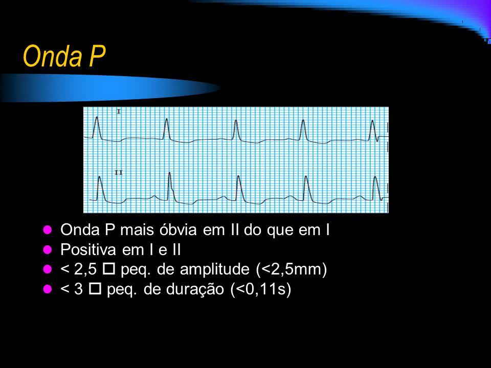 Onda P Onda P mais óbvia em II do que em I Positiva em I e II < 2,5 peq. de amplitude (<2,5mm) < 3 peq. de duração (<0,11s)