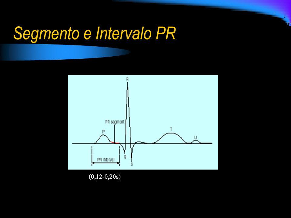Segmento e Intervalo PR (0,12-0,20s)