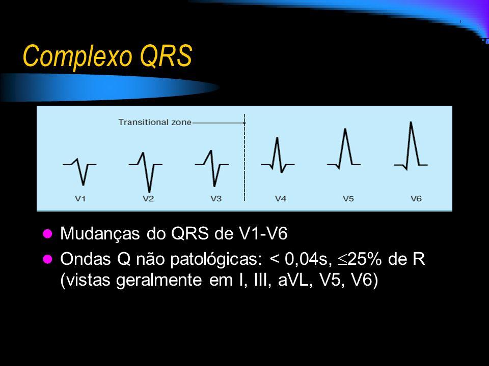 Complexo QRS Mudanças do QRS de V1-V6 Ondas Q não patológicas: < 0,04s, 25% de R (vistas geralmente em I, III, aVL, V5, V6)