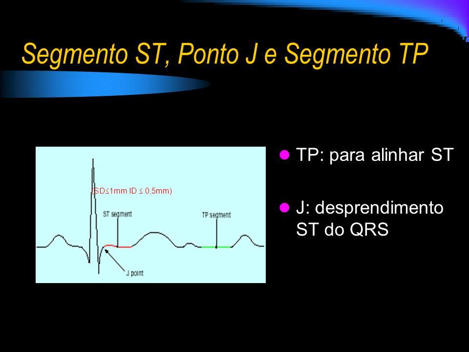 Segmento ST, Ponto J e Segmento TP TP: para alinhar ST J: desprendimento ST do QRS (SD 1mm ID 0,5mm)