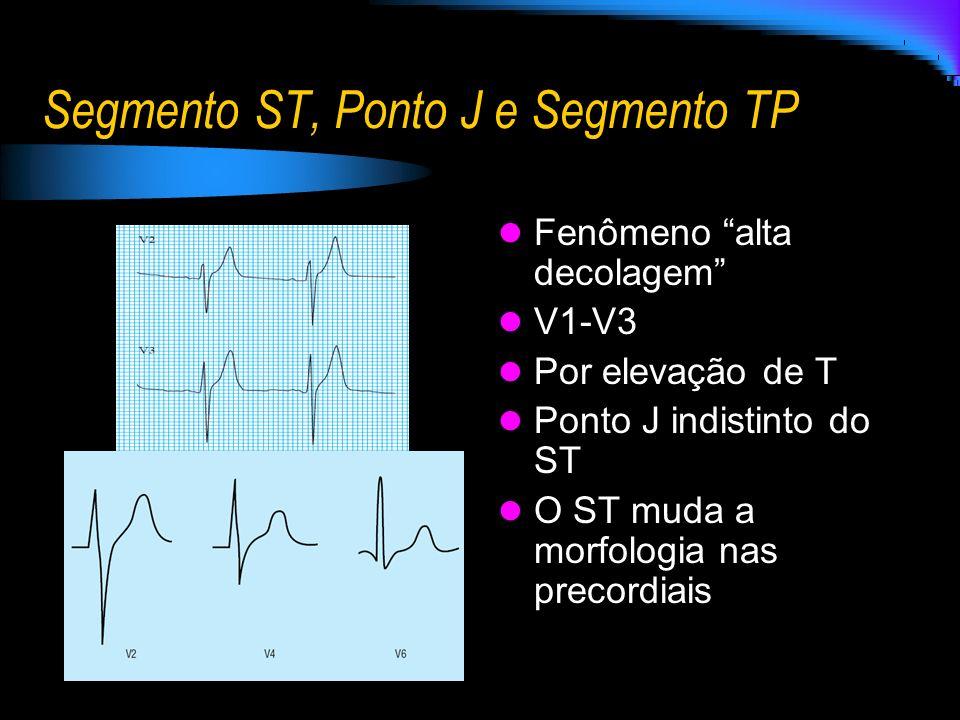 Segmento ST, Ponto J e Segmento TP Fenômeno alta decolagem V1-V3 Por elevação de T Ponto J indistinto do ST O ST muda a morfologia nas precordiais