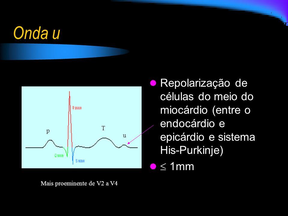 Onda u Repolarização de células do meio do miocárdio (entre o endocárdio e epicárdio e sistema His-Purkinje) 1mm u Mais proeminente de V2 a V4 T p