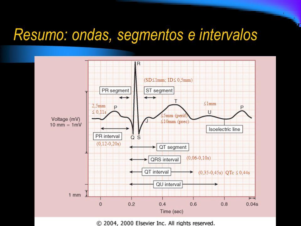Resumo: ondas, segmentos e intervalos (0,12-0,20s) 2,5mm 0,11s (0,35-0,45s) QTc 0,44s (0,06-0,10s) 5mm (perif) 10mm (prec) (SD 1mm; ID 0,5mm) 1mm