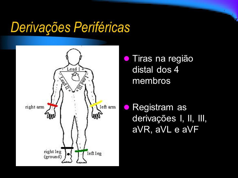 Derivações Periféricas Tiras na região distal dos 4 membros Registram as derivações I, II, III, aVR, aVL e aVF