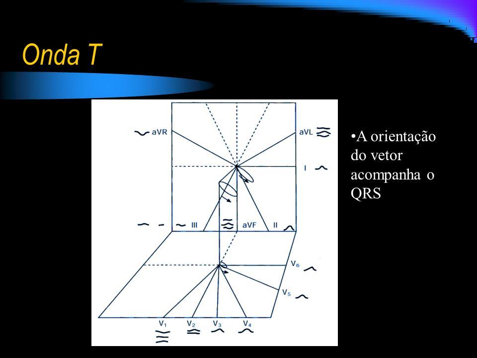 Onda T A orientação do vetor acompanha o QRS
