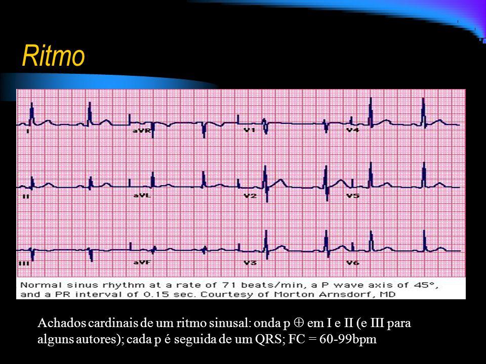 Ritmo Achados cardinais de um ritmo sinusal: onda p em I e II (e III para alguns autores); cada p é seguida de um QRS; FC = 60-99bpm
