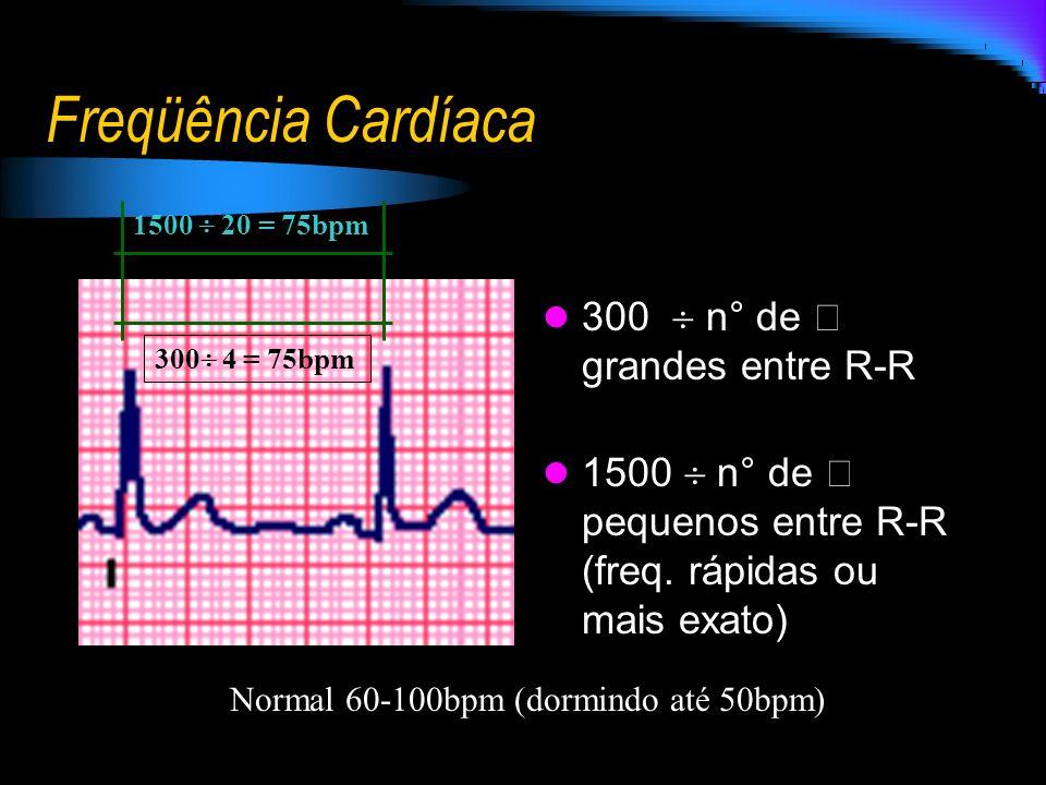 Freqüência Cardíaca 300 n° de  grandes entre R-R 1500 n° de  pequenos entre R-R (freq. rápidas ou mais exato) 300 4 = 75bpm 1500 20 = 75bpm Normal 6