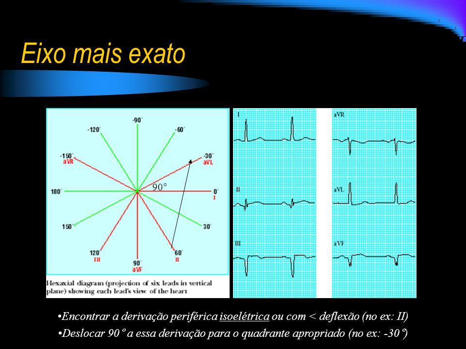 Eixo mais exato Encontrar a derivação periférica isoelétrica ou com < deflexão (no ex: II) Deslocar 90° a essa derivação para o quadrante apropriado (
