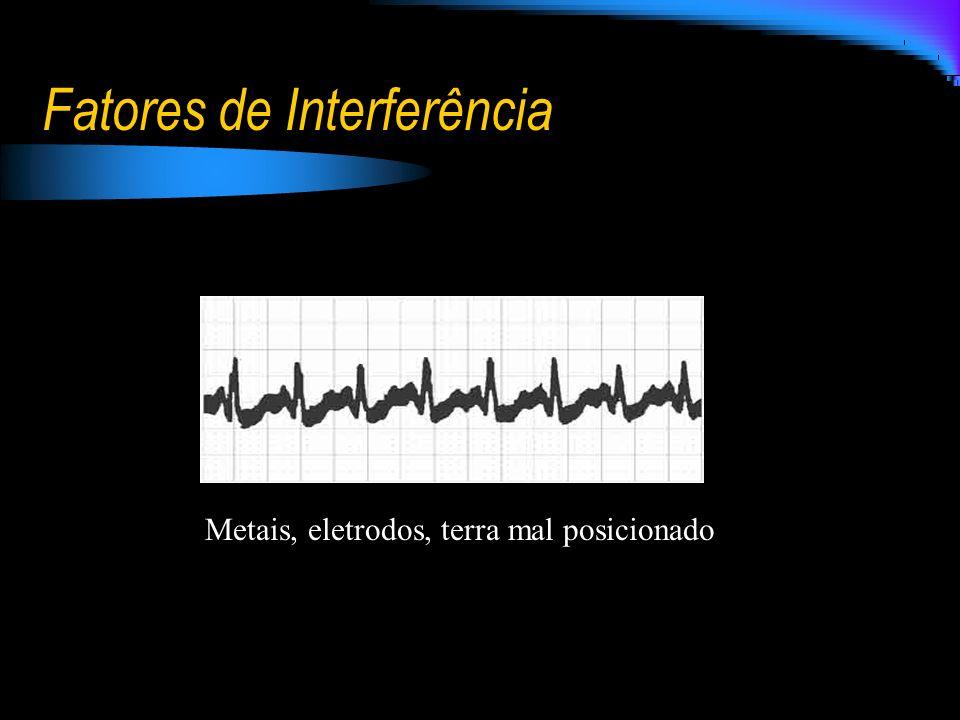 Fatores de Interferência Metais, eletrodos, terra mal posicionado
