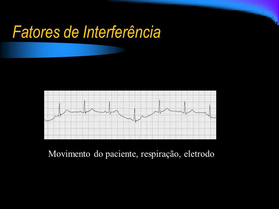 Fatores de Interferência Movimento do paciente, respiração, eletrodo