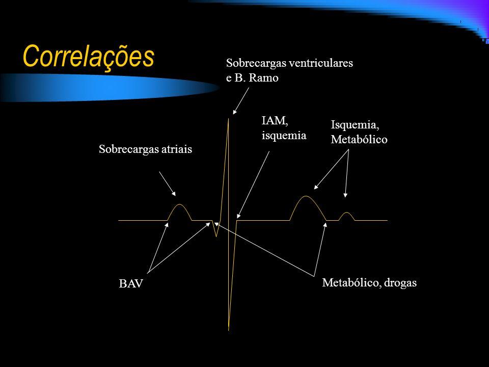 Correlações Sobrecargas atriais BAV IAM, isquemia Isquemia, Metabólico Sobrecargas ventriculares e B. Ramo Metabólico, drogas