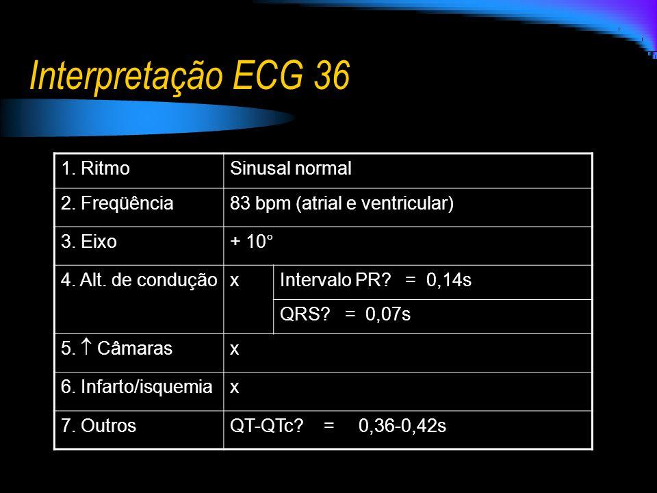 Interpretação ECG 36 1. RitmoSinusal normal 2. Freqüência83 bpm (atrial e ventricular) 3. Eixo+ 10° 4. Alt. de conduçãoxIntervalo PR? = 0,14s QRS? = 0