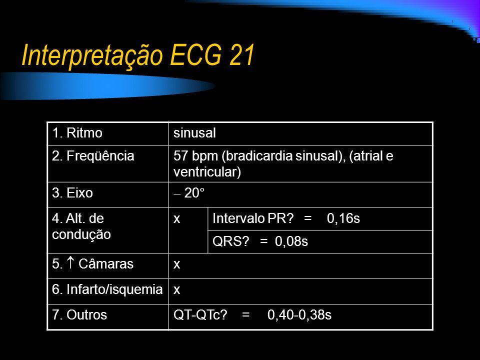 Interpretação ECG 21 1. Ritmosinusal 2. Freqüência57 bpm (bradicardia sinusal), (atrial e ventricular) 3. Eixo 20° 4. Alt. de condução xIntervalo PR?