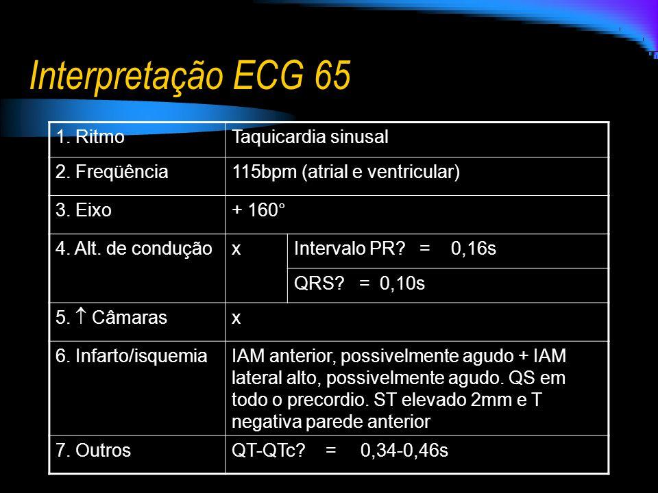 Interpretação ECG 65 1. RitmoTaquicardia sinusal 2. Freqüência115bpm (atrial e ventricular) 3. Eixo+ 160° 4. Alt. de conduçãoxIntervalo PR? = 0,16s QR