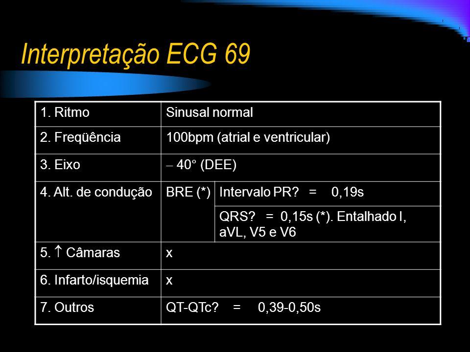 Interpretação ECG 69 1. RitmoSinusal normal 2. Freqüência100bpm (atrial e ventricular) 3. Eixo 40° (DEE) 4. Alt. de conduçãoBRE (*)Intervalo PR? = 0,1