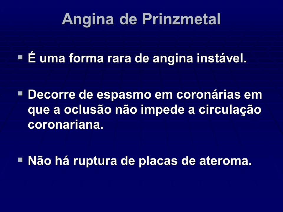 Angina de Prinzmetal É uma forma rara de angina instável. É uma forma rara de angina instável. Decorre de espasmo em coronárias em que a oclusão não i