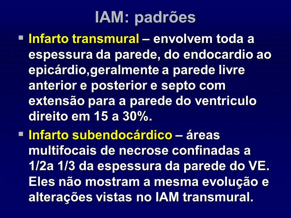 IAM: padrões Infarto transmural – envolvem toda a espessura da parede, do endocardio ao epicárdio,geralmente a parede livre anterior e posterior e sep