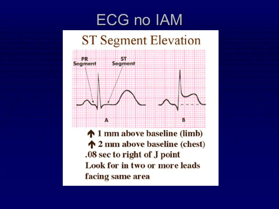 ECG no IAM