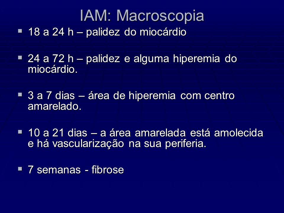 IAM: Macroscopia 18 a 24 h – palidez do miocárdio 18 a 24 h – palidez do miocárdio 24 a 72 h – palidez e alguma hiperemia do miocárdio. 24 a 72 h – pa