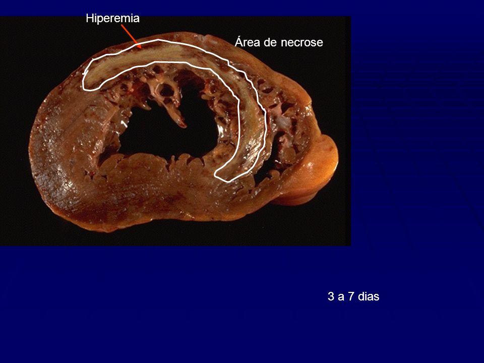 Área de necrose Hiperemia 3 a 7 dias