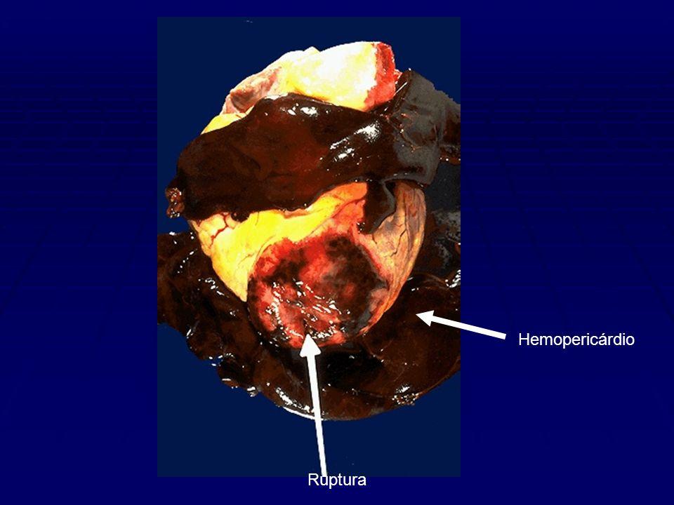 Hemopericárdio