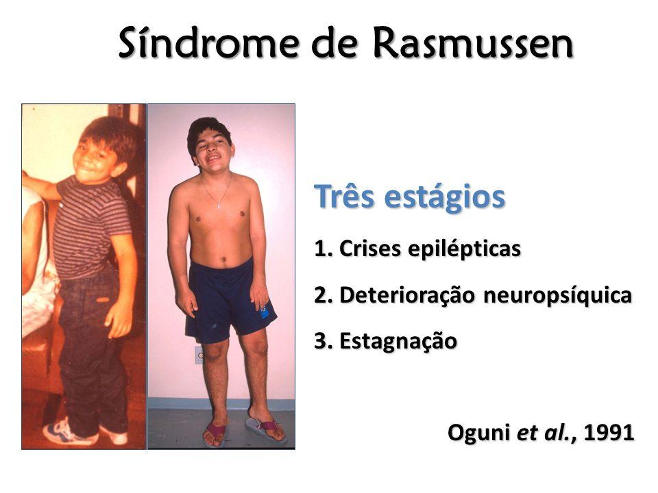 Síndrome de Rasmussen Três estágios 1. Crises epilépticas 2. Deterioração neuropsíquica 3. Estagnação Oguni et al., 1991 Oguni et al., 1991