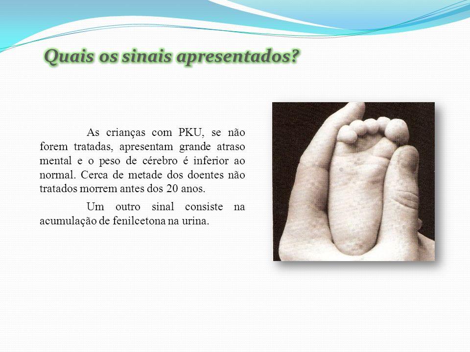 As crianças com PKU, se não forem tratadas, apresentam grande atraso mental e o peso de cérebro é inferior ao normal.