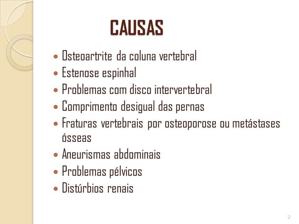 CAUSAS CAUSAS Osteoartrite da coluna vertebral Estenose espinhal Problemas com disco intervertebral Comprimento desigual das pernas Fraturas vertebrai