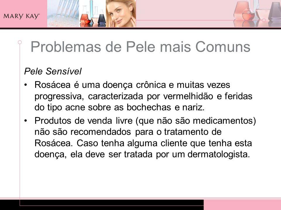 Pele Sensível Rosácea é uma doença crônica e muitas vezes progressiva, caracterizada por vermelhidão e feridas do tipo acne sobre as bochechas e nariz