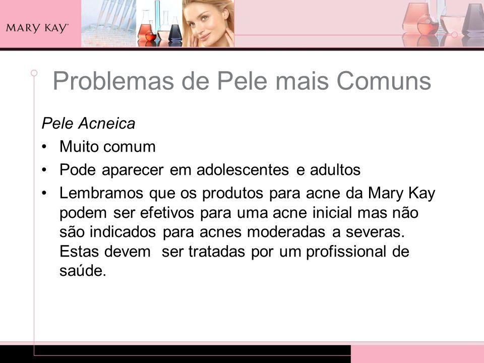 Pele Acneica Muito comum Pode aparecer em adolescentes e adultos Lembramos que os produtos para acne da Mary Kay podem ser efetivos para uma acne inic
