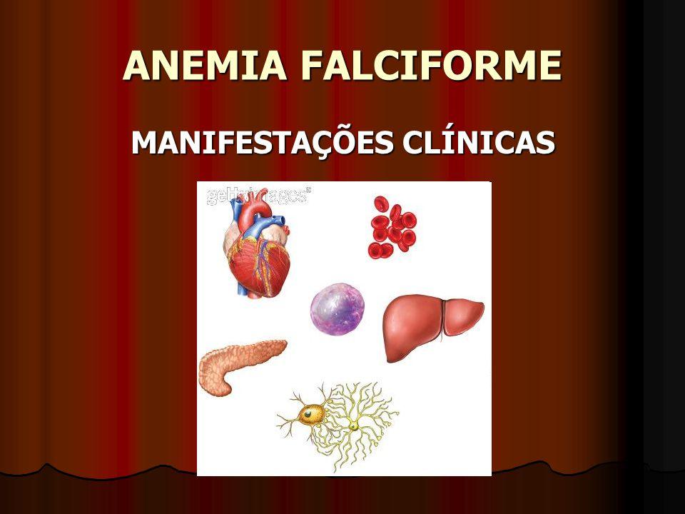 ANEMIA FALCIFORME MANIFESTAÇÕES CLÍNICAS