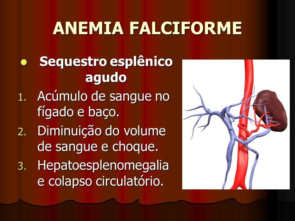 ANEMIA FALCIFORME Sequestro esplênico agudo Sequestro esplênico agudo 1. Acúmulo de sangue no fígado e baço. 2. Diminuição do volume de sangue e choqu