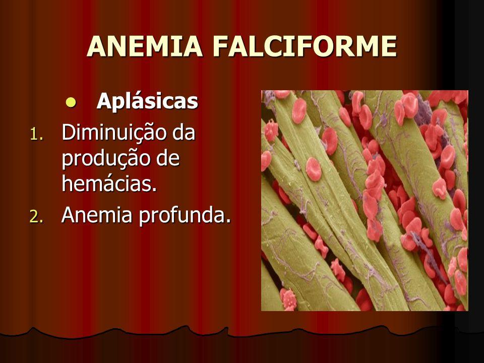 ANEMIA FALCIFORME Aplásicas Aplásicas 1. Diminuição da produção de hemácias. 2. Anemia profunda.