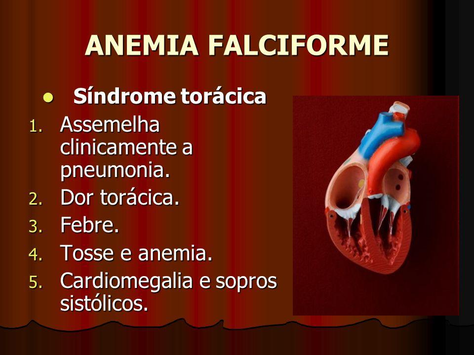 ANEMIA FALCIFORME Síndrome torácica Síndrome torácica 1. Assemelha clinicamente a pneumonia. 2. Dor torácica. 3. Febre. 4. Tosse e anemia. 5. Cardiome