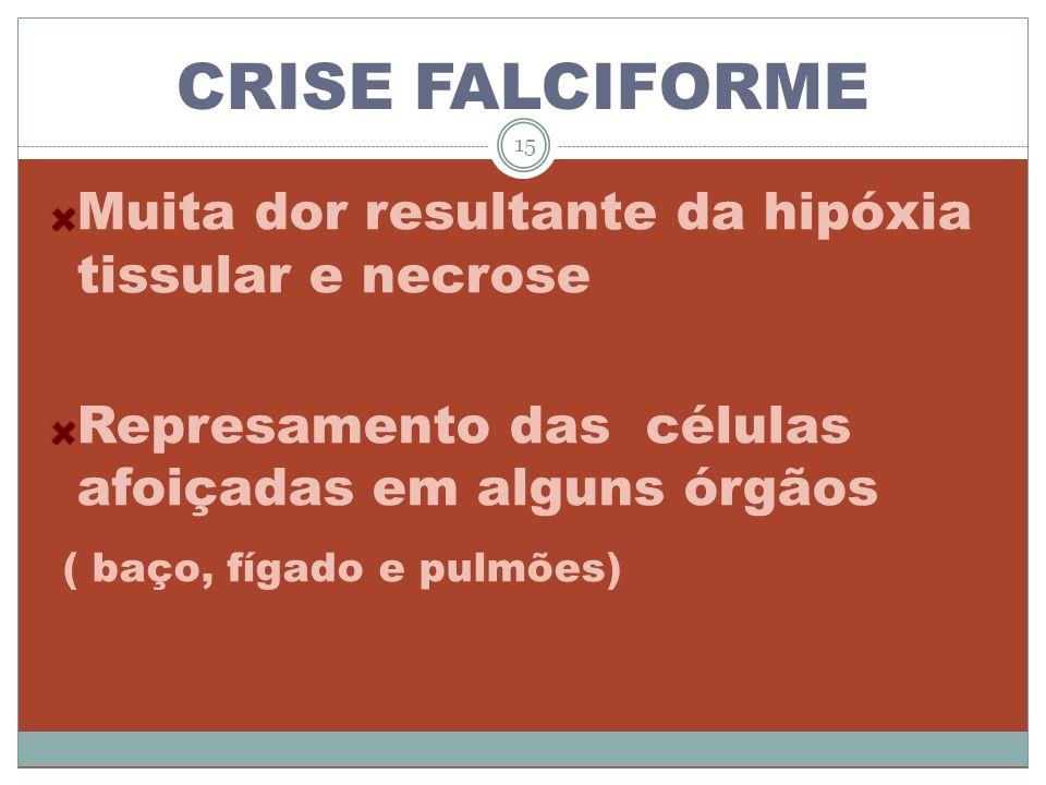 CRISE FALCIFORME Muita dor resultante da hipóxia tissular e necrose Represamento das células afoiçadas em alguns órgãos ( baço, fígado e pulmões) 15