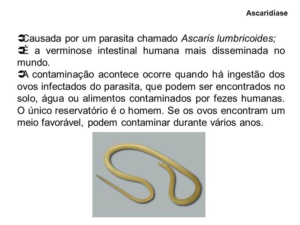 Causada por um parasita chamado Ascaris lumbricoides; É a verminose intestinal humana mais disseminada no mundo. A contaminação acontece ocorre quando