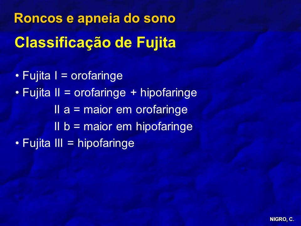 NIGRO, C. Roncos e apneia do sono Classificação de Fujita Fujita I = orofaringe Fujita II = orofaringe + hipofaringe II a = maior em orofaringe II b =